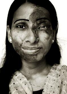 : Acid Burn Survivors, Dhaka, Bangladesh. 2009 : Galleries, Giles Duley