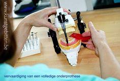 Een opstelling van een onderprothese