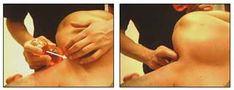 Tratamiento miofascial y de de los puntos gatillos en rigidez cervico-dorsal con la nueva técnica CTS (criomasaje terapéutico en seco). - Artículo de Fisioterapia