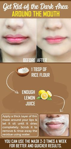 Darkness around the mouth area is very common & can be a result of improper waxing, skin pigmentatio Good Skin Tips, Healthy Skin Tips, Clear Skin Tips, Dark Skin Around Mouth, Darkness Around Mouth, Remedies For Dark Lips, Beauty Tips For Glowing Skin, Skin Care Routine Steps, Photo Couple