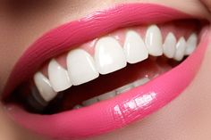 Top Oral Health Advice To Keep Your Teeth Healthy – Best Teeth Whitening Techinque Teeth Health, Healthy Teeth, Oral Health, Dental Health, Smile Teeth, Teeth Care, Dental Hygiene, Dental Care, Happy Dental