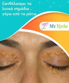 Ξανθέλασμα: τα λευκά σημάδια γύρω από τα μάτια   Πιθανότατα δεν έχετε #ξανακούσει για το ξανθέλασμα. Είναι μικρά λευκά σημάδια που εμφανίζονται γύρω από τα μάτια. Αν δεν #αντιμετωπιστούν εγκαίρως, μετατρέπονται σε #αντιαισθητικούς καλοήθεις όγκους. Αυτές οι μικρές συσσωρεύσεις λίπους εμφανίζονται γύρω από την περιοχή του βλεφάρου, τους δακρυϊκούς πόρους ή γύρω από την οφθαλμική κόγχη. Όταν οι ασθενείς ανακαλύπτουν αυτά τα λευκά σημάδια. #ΥγιεινέςΣυνήθειες Health, Health Care, Salud