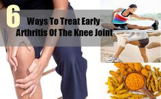Ways To Treat Early Arthritis Of The Knee Joint