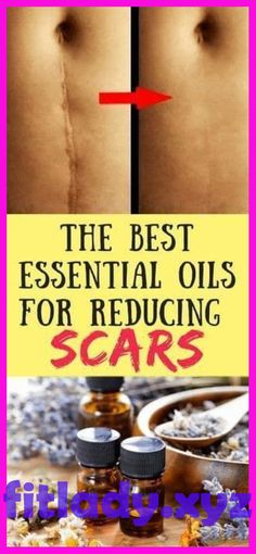 Scars Will Be Gone By Using This Essential Oils Amazing! All we want then is for it to return to the way it was, to be normal again. Oils For Eczema, Oil For Dry Skin, Healing Oils, Best Essential Oils, Pimples, Restore, How To Stay Healthy, Natural Remedies, Massage
