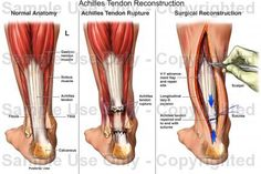 Achilles Tendon Ruptured