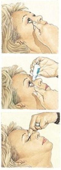 Glaucoma: La mayoría de las gotas producen pequeños efectos secundarios leves como irritación ocular, sequedad, ojo mínimamente rojo... Si aparecen síntomas nuevos al empezar una nueva gota de la presión es importante comunicarlo a vuestro oftalmólogo.