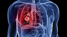 Ученые выяснили, как дизельные частицы влияют на легкие http://healthvesti.com/pulmonary-disease/201526994/uchenye-vyyasnili-kak-dizelnye-chasticy-vliyayut-na-legkie.html