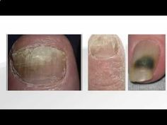 looking for ways to cure a toenail fungus infection? Watch this quick youtube vi