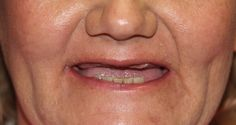 Smile Designs by Golpa - Golpa Dental Implant Center - Google+