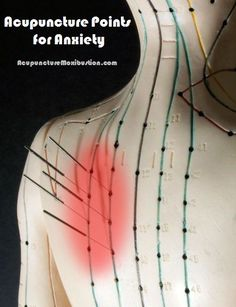 Various acupuncture points have been used to treat anxiety disorders and symptoms induced by emotional stress.