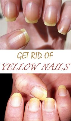 Surely you faced the problem of yellow nails before. Nail beauty experts have several tricks that you can use at home to have impeccable nails again: