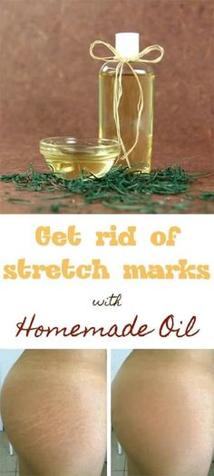 Get rid of stretch marks with homemade oil | Stretch Marks, Oil and Homemade