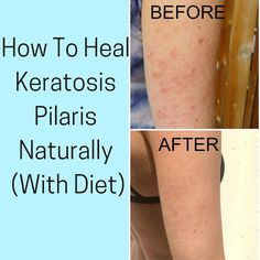 Keratosis Pilaris. Also commonly referred to as KP or chicken skin. Put more simply, those annoying little bumps on the back of your arm...