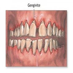 8 Best Natural Cure For Gingivitis