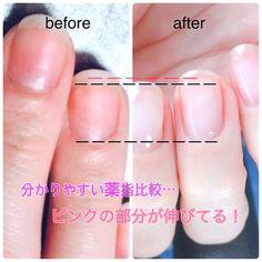 Beauty Tips For Glowing Skin, Beauty Skin, Hair Beauty, Gel Nails, Nail Polish, Cute Beauty, Christmas Nails, Nail Care, Eye Makeup