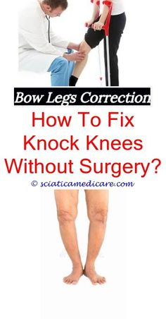 bull legged toddler best shoes for knock knees - bandy legs correction.bow  leg correction surgery bow legged feet is being bow legged bad what vitamin  ...