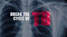 The Health Chronicle - Tuberculosis Health, Salud