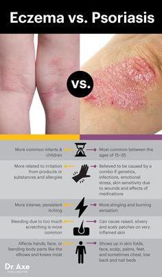 Eczema vs. psoriasis - Dr. Axe  http://www.draxe.com #health #holistic #natural