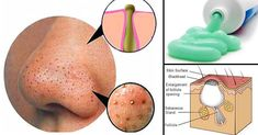 We all want to have clear skin, but those little parasites called blackheads come between our wishes. Blackheads are very small pimples with no skin on them, and because of … Blackhead Remedies, Blackhead Remover, Acne Remedies, Skin Tips, Skin Care Tips, Small Pimples, Clear Skin Diet, Lose 30 Pounds, Moisturizer For Dry Skin