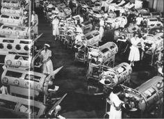 Polio epidemics before vaccine