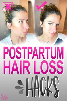 If you're facing the challenge of postpartum hair loss, these tips and hacks from a licensed hairdresser will help! Hair Loss After Baby, Normal Hair Loss, Hair Loss After Pregnancy, Postpartum Hair Loss, Postpartum Body, Post Pregnancy, Biotin For Hair Loss, Hair Loss Shampoo, Hair Loss Women