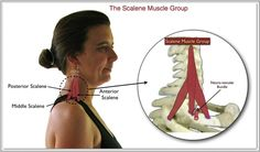 A therapist must know this muscle group and its trigger points very well if they are to offer effective solutions to their client's chest pain, upper back pain, shoulder pain, radiating arm pain or thoracic outlet syndrome, wrist pain, and hand pain complaints. The job of releasing Scalene trigger points is made more difficult by the somewhat hidden location of the muscle group and its proximity to many important nerve trunks and blood vessels in the neck region.