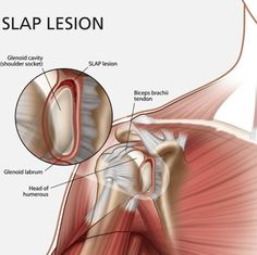 Arthroscopic Labrum Repair of the Shoulder (SLAP) and return to Sport Knee Ligament Injury, Bicep Tendonitis, Knee Ligaments, Shoulder Rehab, Shoulder Problem, Hand Therapy, Massage Therapy, Arthroscopic Shoulder Surgery, Shoulder Anatomy