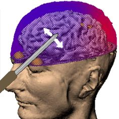 Ice pick lobotomy. Ice pick goes through the eye socket, into your brain, and once there, they just rotate the pick to mix your brain up a bit. This procedure was routine in the 1950s, there was even 1 Dr who traveled the country in a van and would do this procedure in your home or hotel room.