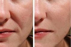 Beauty Care, Beauty Makeup, Beauty Hacks, Hair Beauty, Loose Skin, Wash Your Face, Beauty Recipe, Anti Wrinkle, Face Care
