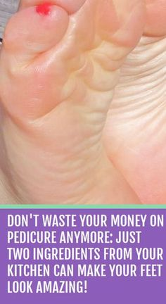 Don't Waste Your Money on Pedicure Anymore: Just Two Ingredients from Your Kitchen Can Make Your Feet Look Amazing! Don't Waste Your Money on Pedicure Anymore: Just Two Ingredients from Your Kitchen Can Make Your Feet Look Amazing! Home Health Remedies, Natural Health Remedies, Natural Cures, Herbal Remedies, Natural Beauty, Scar Remedies, Natural Healing, Dry Feet Remedies, Natural Treatments