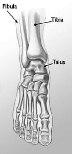 A broken ankle, also called an ankle fracture, is a common childhood injury. Ankle fractures in children are most likely to involve the tibia and fibula (the long bones in the lower leg). These types of fractures often involve the growth plates. Forearm Anatomy, Ankle Anatomy, Foot Anatomy, Anatomy Drawing, Anatomy Art, Ankle Fracture, Ligament Injury, Types Of Fractures, Nursing Study Tips