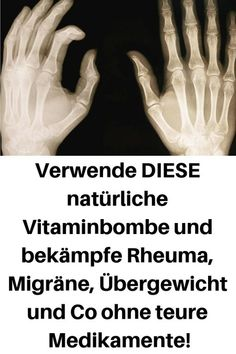 Use THIS natural vitamin bomb and fight rheumatism, migraine, overweight and co without expensive me Natural Vitamins, Natural Health, Arthritis, Daily Health Tips, Natural Women, Body Detox, Health Motivation, Fitness Nutrition, Health Diet