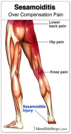 19 Best MendMyKnee images in 2018 | Knee pain, Knee injury, Patellar
