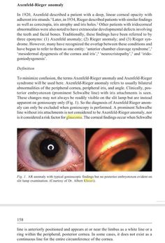 Diagnosis and treatment of glaucoma. Albert S Khouri, MD Academic practice- Rutgers New Jersey Medical School Opthalmic Technician, Doctor Office, Optometry, Medical School, New Jersey, Four Square, Childhood, Wellness, Med School