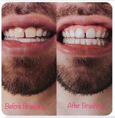 Ap 24, Teeth Care, Teeth Whitening, Dental, Tips, Nu Skin, Pasta, Magic, Smile