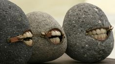 Weird rock teeth  #santamonicabaydental
