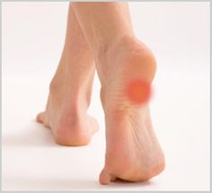 Easy home remedies to get rid of heel pain :http://diyhealth.com/easy-home-remedies-rid-heel-pain.html