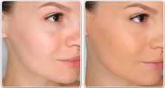 Крем Vichy Normaderm Global (Виши Нормадерм) отзывы,цена,купить.Крем для проблемной кожи лица  http://www.totzyvy.com/2014/09/vichy-normaderm-krem.html