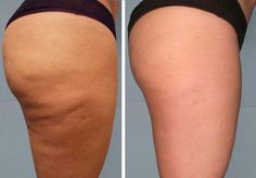 Anti-cellulite Scrub! ❤️ #tipit