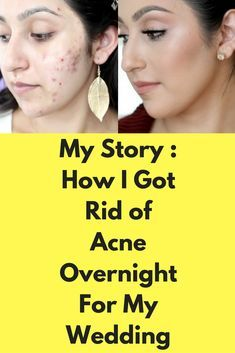 My Story : How I Got Rid of Acne Overnight For My Wedding I used these methods to get rid of acne overnight for my wedding. Method 1 : Take some ice and put it in a clean cloth and put it on your pimple. This will constrict the blood vessels and shrink it. Method 2 : Take some hot water in a bowl and take the steam on to …