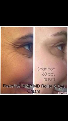 Before and After-60 Day Results from Rodan and Fields REDEFINE Regimen, Amp MD Roller, and Multi-Function Eye Cream