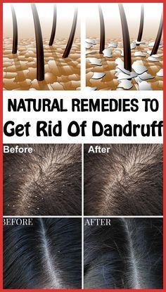 Are you ashamed of wearing a black dress? Try natural home remedies for dandruff. Using these remedies on a regular basis, you will get an effective result within 15 days. Heading: Apply natural home remedies for dandruff and shine with your hair. Home Remedies For Dandruff, Natural Home Remedies, Rosacea Remedies, Herbal Remedies, Health Remedies, Dry Hair Remedies, Itchy Scalp Remedy, Dry Itchy Scalp, African Hairstyles