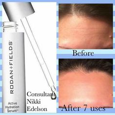 """Rodan+Fields AMAZING Active Hydration Serum is my new favorite product!  at Nikki's results after 7️⃣uses & what she had to say: """"I'm obsessed with our new Active Hydration Serum!! I thought my skin was pretty good, but this brings in Hydration that I had no idea I needed! Just look- my lines diminishing even MORE & my skin is literally GLOWING from the dewy, healthy firmness❤️""""  Balances Oily skin Reduces Fine Lines Visible Firmness Added Brightness #RFHydrationNation #h2ofortheskin"""