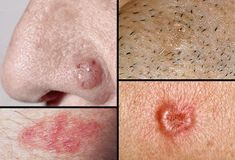 5 Warning Signs of Basal Cell Carcinoma -Basal cell carcinoma is a slow-growing form of skin cancer.... It usually develop on areas exposed to the sun, especially the head and neck, but they can occur anywhere on the body..Watch for these warning signs: