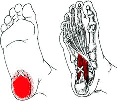 Pain patterns referred from trigger points at commonly observed locations in the peroneal muscles.