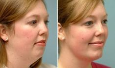 "Here is a pretty useful video which can help you to get rid of a double chin. It can also help with toning loose skin. It is all about the technique called ""natural face lift"". Watch the video and . Double Chin Exercises, Neck Exercises, Facial Exercises, Stretches, Toning Exercises, Fitness Workouts, Tighten Loose Skin, Natural Face Lift, Chin Up"