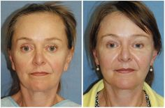 This is Karen, the Owner of the Northwest Women's Show. She received the YoungVitalizer | Incision Less Lift for the Upper and Lower Eyes, Eyebrows, Cheeks and the Whole Face in General. The YoungVitalizer replaced her needs for a Facelift, Browlift, Eyelift, Cheeklift, Liplift, Midfacelift, etc.