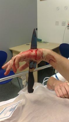 First aid workers are taught that should you be presented with a trauma victim, impaled by any blunt or sharp object (anywhere on the body); to leave the object/ weapon intact, & if possible, to cushion & support from further injury until patient is delivered to an ER/ Trauma Centre. If one were to remove this knife, patient would likely sustain further more serious nerve/ vessel/ bone/ tissue injury & possibly bleed to death w/o proper tools, meds, equipment & expertise! (Cont'd...)