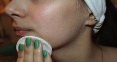 Des solutions naturelles peuvent vous aider à nettoyer vos pores en profondeur pour éliminer les impuretés au quotidien. Voici la meilleure façon de nettoyer votre visage pour retrouver une peau de bébé ! La peau de votre visage reflète votre état de santé, laquelle est fragilisée par les agressions extérieures telles que le stress, le … Clogged Pores, Clean Face, Cleanse, Shit Happens, Beauty, Site Officiel, Facial, Life, Nail Care
