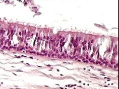 Pseudostratified epithelial - ciliated | K Wynne Tyler Jr college Epithelial tissue slides